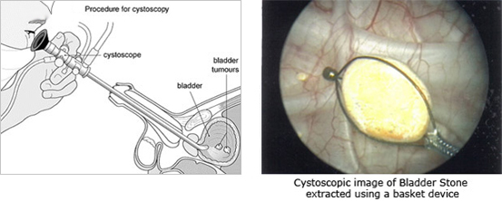 in the bladder can be biopsied and fulgurated, stones in the bladder ...